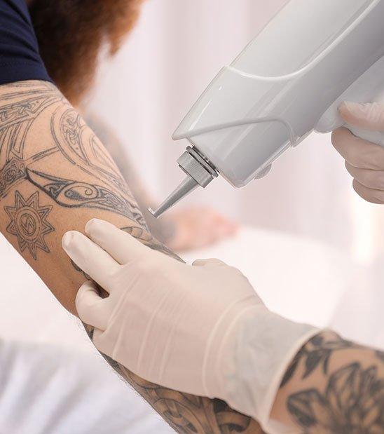 Indications et risques des séances de détatouage à La Rochelle | Skin Clinic