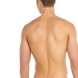 Epilation définitive du dos à La Rochelle - Homme | Skin Clinic
