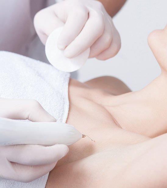 Indications et risques d'une séance d'épilation laser à La Rochelle | Skin Clinic