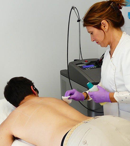 Précautions à prendre avant une épilation laser à La Rochelle | Skin Clinic