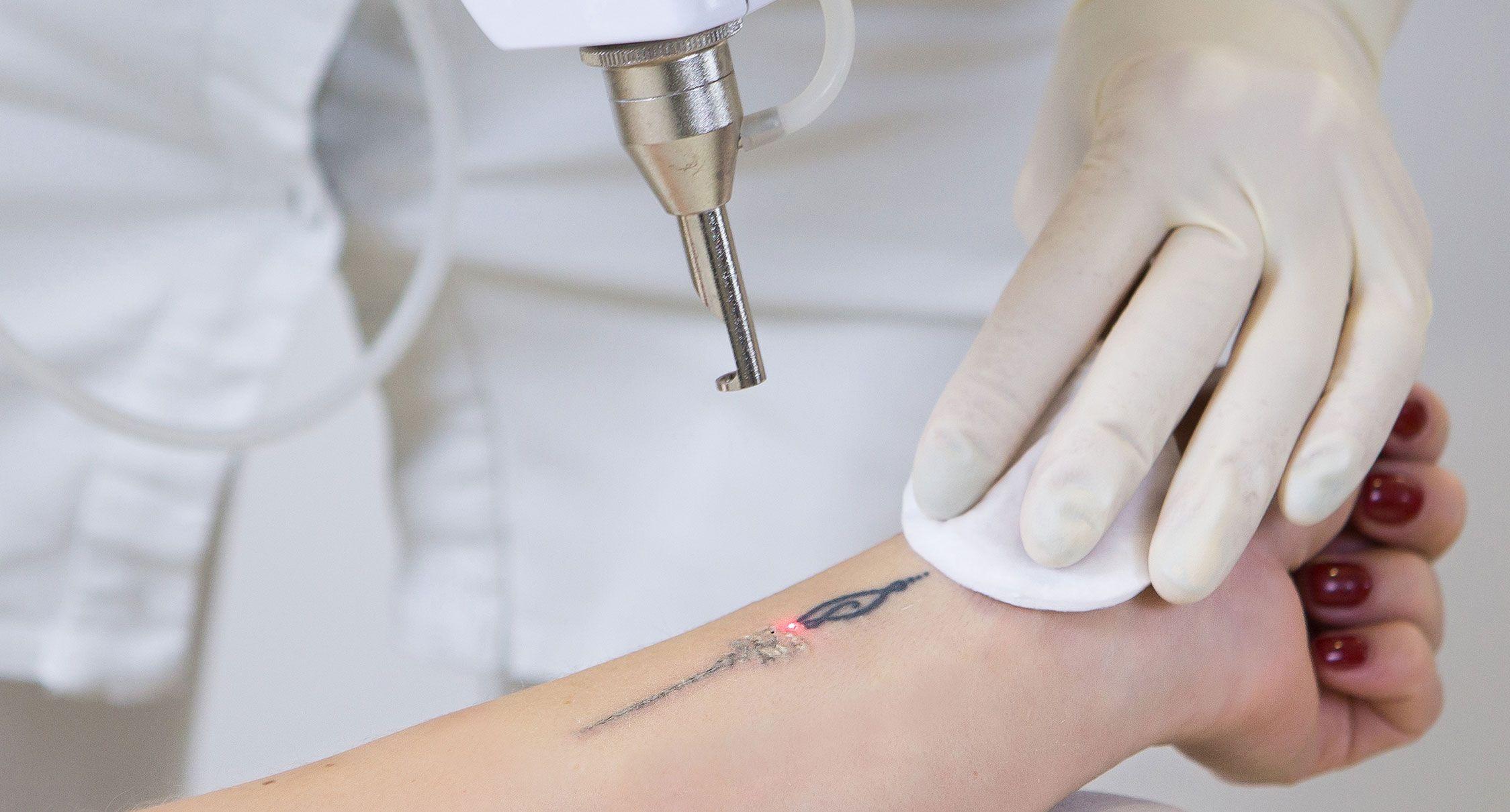Détatouage - Indications et solutions | Skin Clinic - La Rochelle