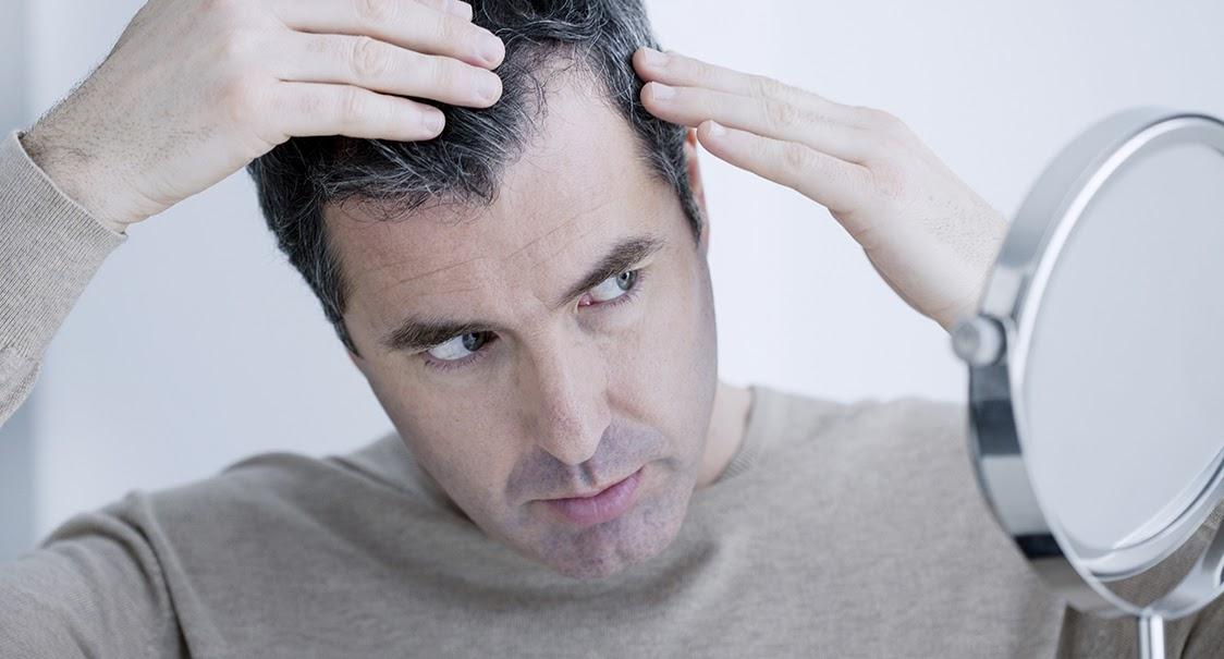 greffe de cheveux Skin Clinic